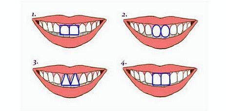 Физиогномика – зъбите и чертите на характера